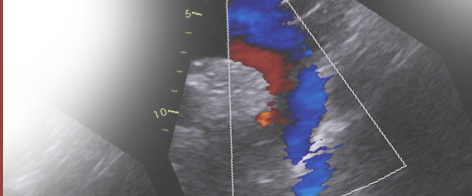 Echocardiography Data Set